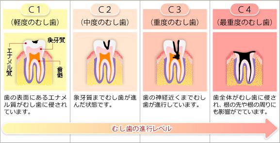 虫歯の進行の様子